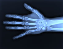 X-ray hand. Medical photo Royalty Free Stock Photography