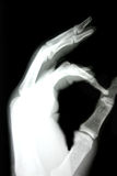 X-ray of hand. X-ray of a hand showing the OK sign Royalty Free Stock Images