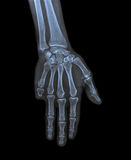 X ray of hand with amputated little finger Royalty Free Stock Image