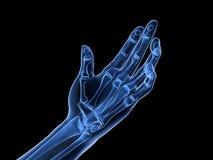 X-ray hand - arthritis Stock Image