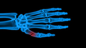 X-ray hand Stock Image