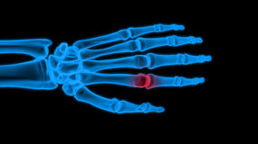 X-ray hand. On black background Stock Photos