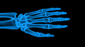 X-ray hand Royalty Free Stock Photo