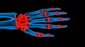 X-ray hand Stock Images
