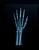 X-ray hand Royalty Free Stock Photography