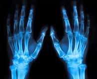 X-ray of an hand (blue) Stock Photography
