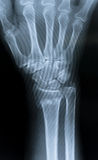 X-Ray of the hand. / Distal radial epiphysis fracture stock photos