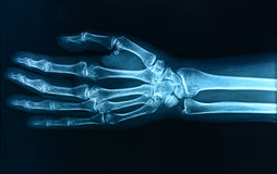 X-ray hand Royalty Free Stock Images