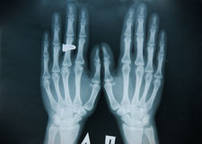 X-ray hand (finger) Royalty Free Stock Photography