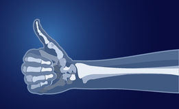X-ray of the hand. X-ray hand. Hand finger up done in the style of X-rays with the image of the bones. Vector Image. All elements on layers Stock Photos