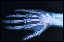 X-ray of  Hand and fingers Stock Photo