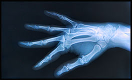 X-ray of  Hand and fingers Stock Photos