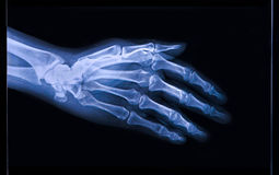 X-ray of  Hand and fingers. X-ray of human  Hand and fingers Royalty Free Stock Photos