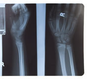 X-ray of hand and forearm Royalty Free Stock Image