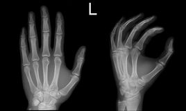 X-ray hand Frontal Oblique view normal. X-ray of the hand in two projections royalty free stock photography