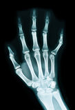 X-ray of a hand Royalty Free Stock Images
