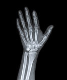 X Ray of  hand. Royalty Free Stock Photography