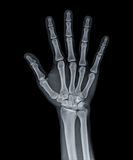 X Ray of  hand. X Ray of Hand of man showing all fingers Stock Photos