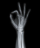 X Ray of  hand. Royalty Free Stock Images