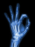 X-ray hand with OK symbol. X-ray hand  with OK symbol Royalty Free Stock Images