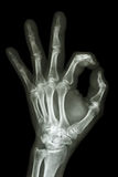 X-ray hand with OK symbol Stock Photography