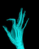 X-Ray. Of hand,painful royalty free stock images