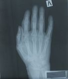 X-ray of hand of patient Royalty Free Stock Photography