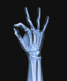 X Ray of hand Royalty Free Stock Photos