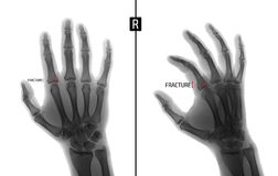 X-ray of the hand. Shows the Fracture of the base of the proximal phalanx of the second finger of the right hand. Marker. Negative Royalty Free Stock Photo