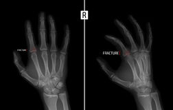X-ray of the hand. Shows the Fracture of the base of the proximal phalanx of the second finger of the right hand. Marker. Negative. Radiography of the hand stock photo