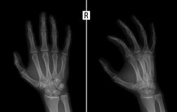X-ray of the hand. Shows the Fracture of the base of the proximal phalanx of the second finger of the right hand. Royalty Free Stock Image