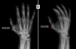 X-ray of the hand. Shows the subluxation of the proximal phalanx of the first finger of the right hand. Marker. Radiography of the hand. Subluxation of the Royalty Free Stock Photo