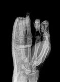 X-ray. X ray hand with wear a cast royalty free stock photos