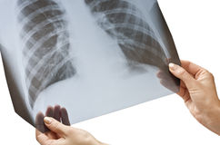 X-ray in hands Stock Images
