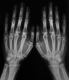 X-ray of hands. Black and white photo of x-ray film with  image of human hands Royalty Free Stock Photos