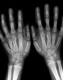 X-ray hands Royalty Free Stock Images