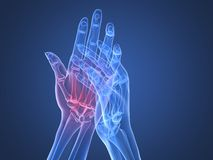 X-ray hands - arthritis Royalty Free Stock Photography
