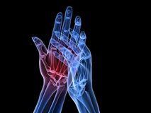 X-ray hands - arthritis Stock Photos