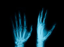 X-ray of hands Royalty Free Stock Photography