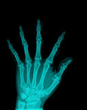 X-Ray. Of the hands on black background royalty free stock photo
