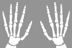 X-Ray Of Hands. The bones of the hand x-ray on a white background vector illustration