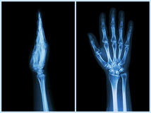 X-Ray Hands ( front & side view ) : Normal human hands Royalty Free Stock Photo
