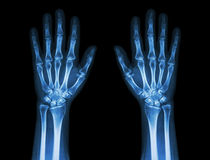 X-Ray Hands ( front view ) :  Normal human hands Stock Photos