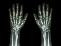 X-Ray Hands ( front view ) : Normal human hands Royalty Free Stock Images