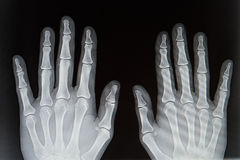 X-ray from hands Royalty Free Stock Photography