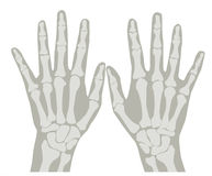 X-Ray Hands 1 Royalty Free Stock Photo