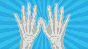 X-Ray Hands 2 Stock Image