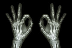 X-ray hands with OK sign Royalty Free Stock Photos