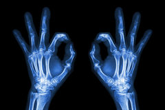 X-ray hands with OK sign . stock image