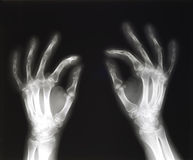 X-ray of hands pinching Royalty Free Stock Photos